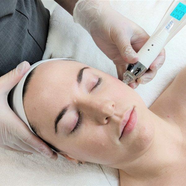 EPN-Treatment